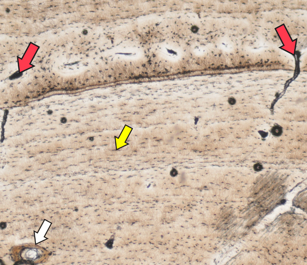 "In this slice of crocodile bone, there are blood vessels (red arrows) and bone cells (yellow arrow), but not as many as ""Joe"" had! That is because crocodiles today grow much slower than dinosaurs did. We also see a circular osteon (white arrow), a sign that this crocodile was repairing its bone tissue. The horizontal lines below the red arrows are yearly rings, similar to yearly rings in trees. Image (c) 2013 Sarah Werning."