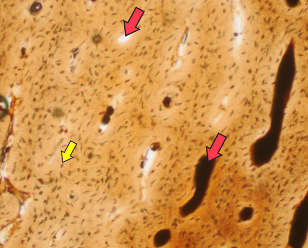 """In this slice of """"Joe's"""" bone, we can see blood vessels (red arrows) and bone cells (yellow arrows), which look like pepper flakes. The faster an animal grows, the more blood vessels it needs to carry nutrients and oxygen. It also needs more bone cells to build and maintain the bone tissue. """"Joe"""" has a lot of blood vessels AND bone cells, so we knew """"Joe"""" grew fast!"""