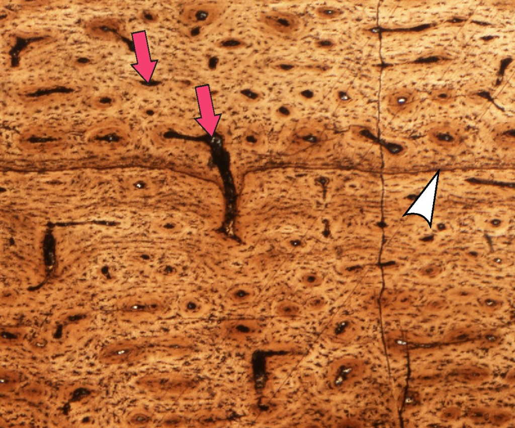 This is a close-up shot of the above <i>Tenontosaurus</i> shin bone showing what it looks like under a microscope. The white arrow points to a yearly ring. The red arrows point to spaces where blood vessels once coursed through the bone. All of the little pepper-like dots on the image are bone cells! Image modifed from a paper by Sarah Werning (link: http://www.plosone.org/article/info%3Adoi%2F10.1371%2Fjournal.pone.0033539), specimen in the collections of the Sam Noble Oklahoma Museum of Natural History (link: http://www.snomnh.ou.edu/).